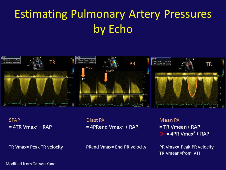 Estimating Pulmonary Artery Pressures by Echo
