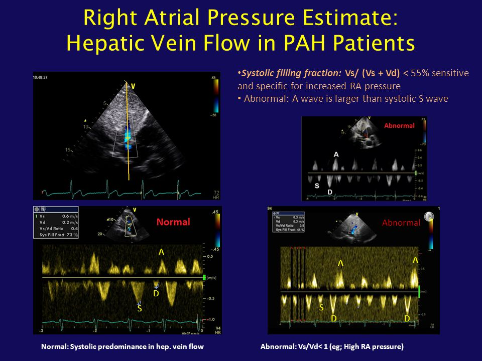 Right Atrial Pressure Estimate: Hepatic Vein Flow in PAH Patients