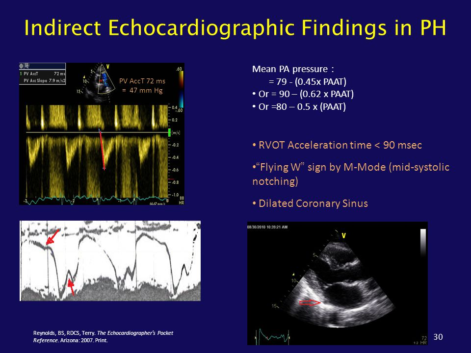 Indirect Echocardiographic Findings in PH