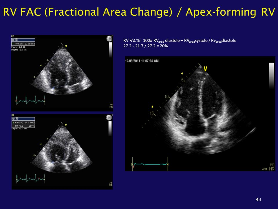 RV FAC (Fractional Area Change) / Apex-forming RV