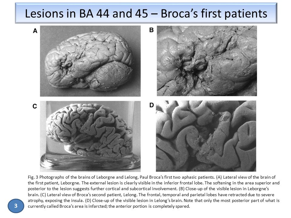 Lesions in BA 44 and 45 – Broca's first patients