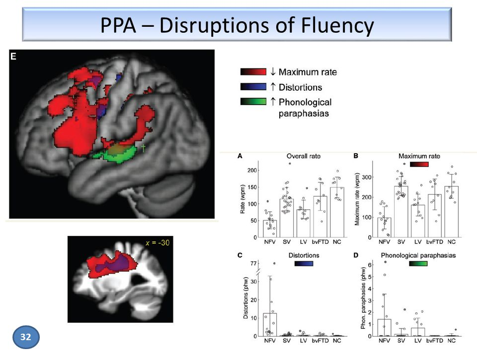 PPA – Disruptions of Fluency