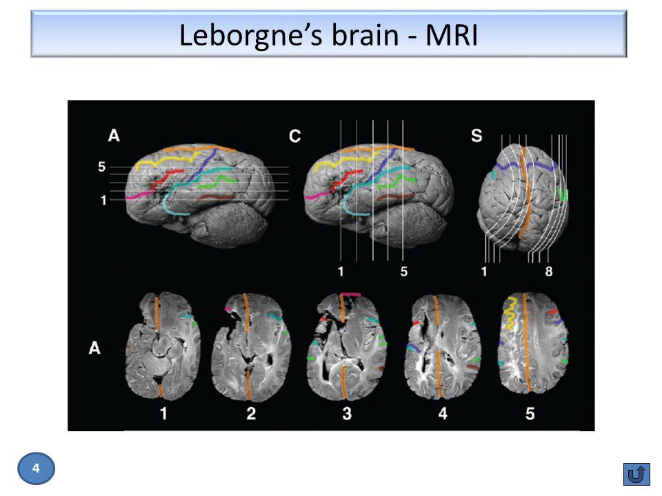Leborgne's brain - MRI