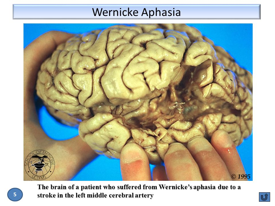 Wernicke Aphasia The brain of a patient who suffered from Wernicke's aphasia due to a stroke in the left middle cerebral artery.
