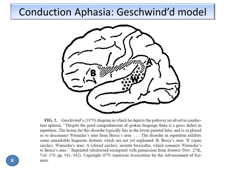 Conduction Aphasia: Geschwind'd model