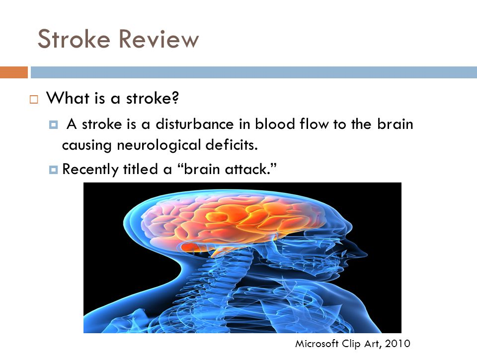 Stroke Review What is a stroke