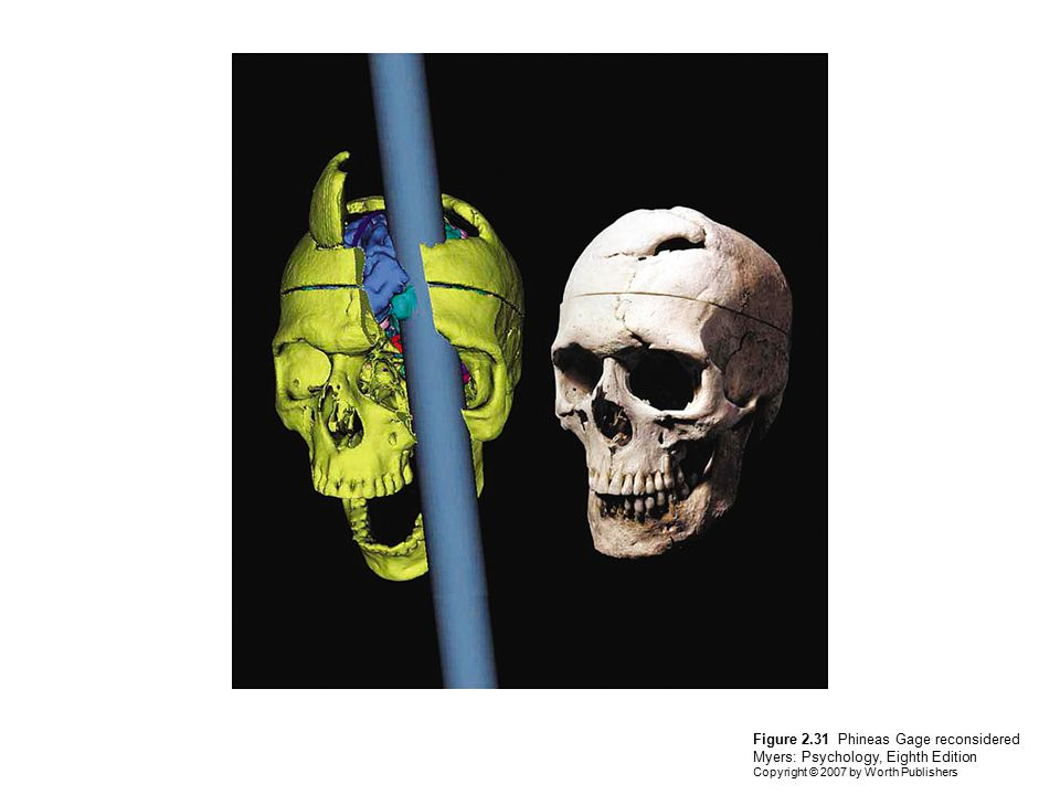 Figure 2.31 Phineas Gage reconsidered Myers: Psychology, Eighth Edition Copyright © 2007 by Worth Publishers