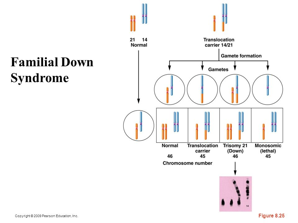 Familial Down Syndrome