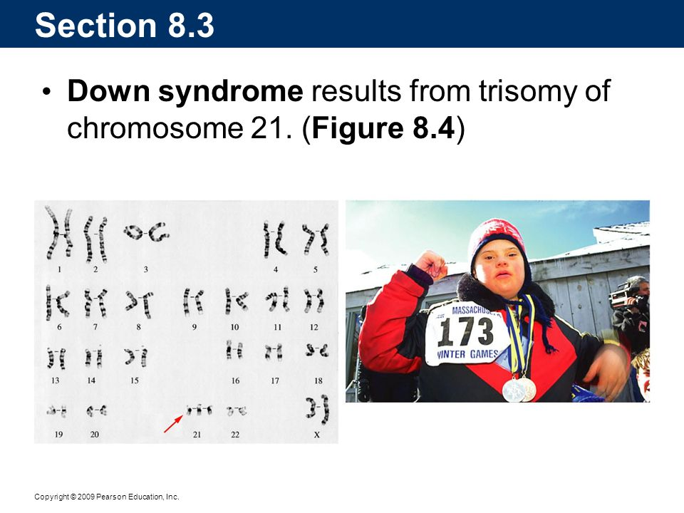 Section 8.3 Down syndrome results from trisomy of chromosome 21. (Figure 8.4)
