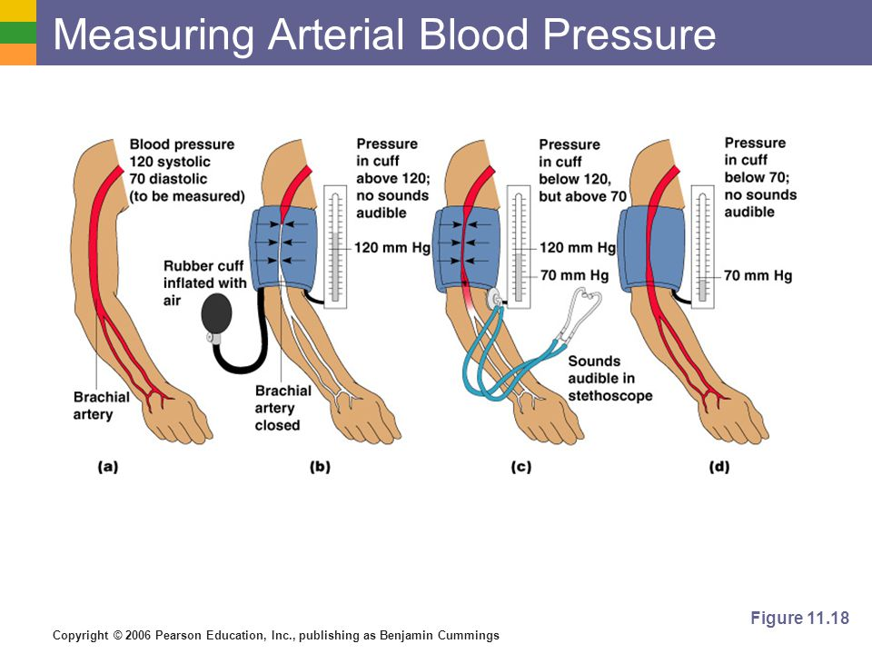 Measuring Arterial Blood Pressure