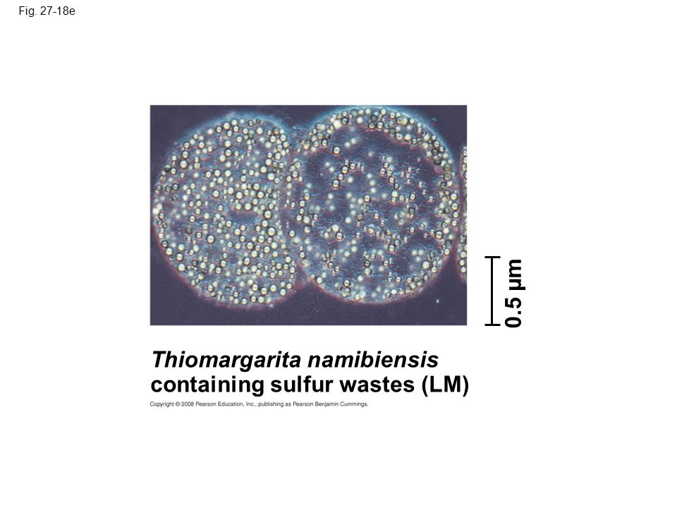 Thiomargarita namibiensis containing sulfur wastes (LM)