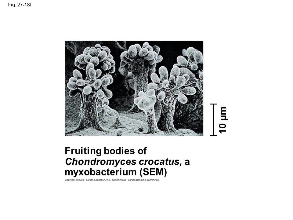 Chondromyces crocatus, a myxobacterium (SEM)