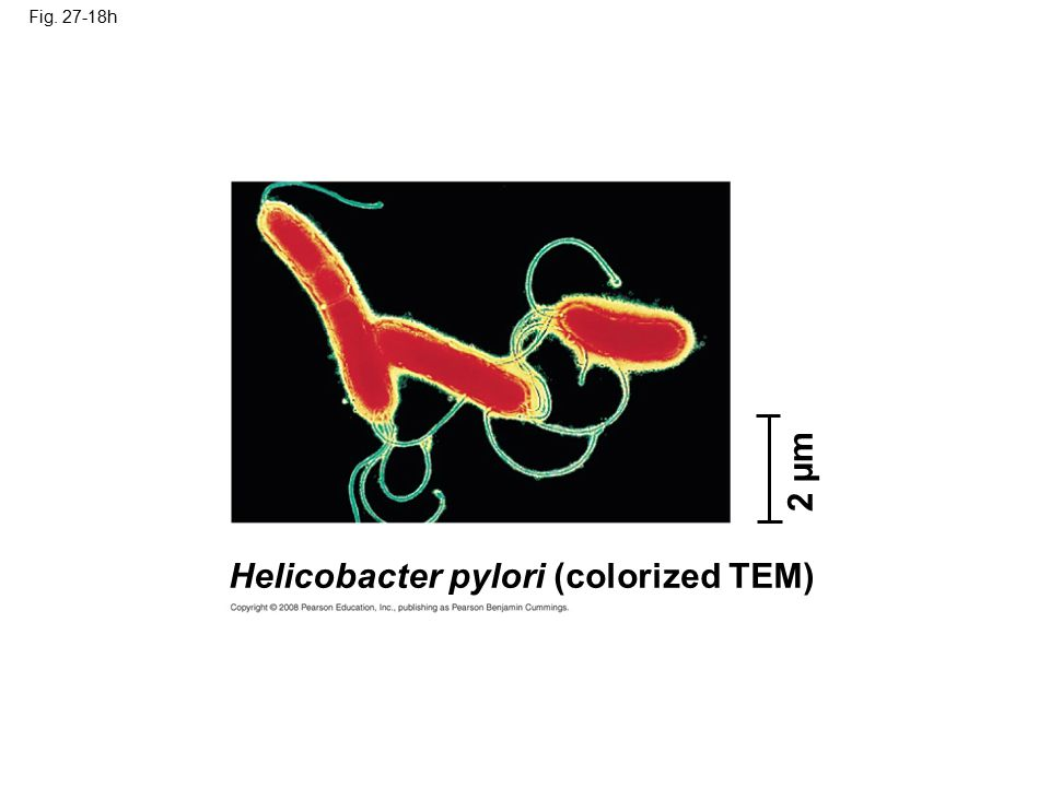Helicobacter pylori (colorized TEM)