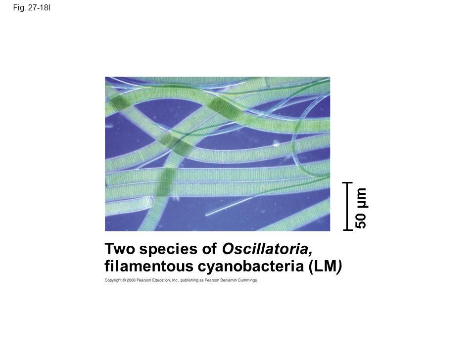 Two species of Oscillatoria, filamentous cyanobacteria (LM)
