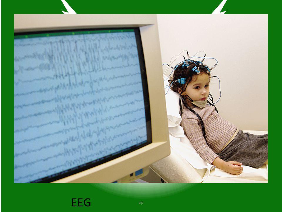 EEG ap