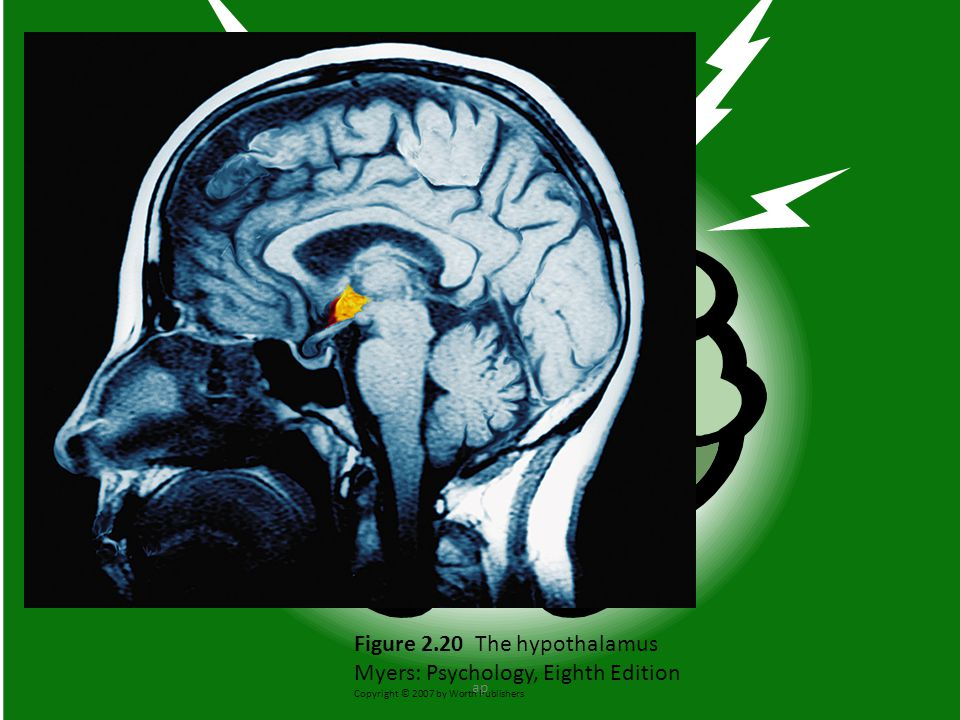Figure 2.20 The hypothalamus Myers: Psychology, Eighth Edition Copyright © 2007 by Worth Publishers