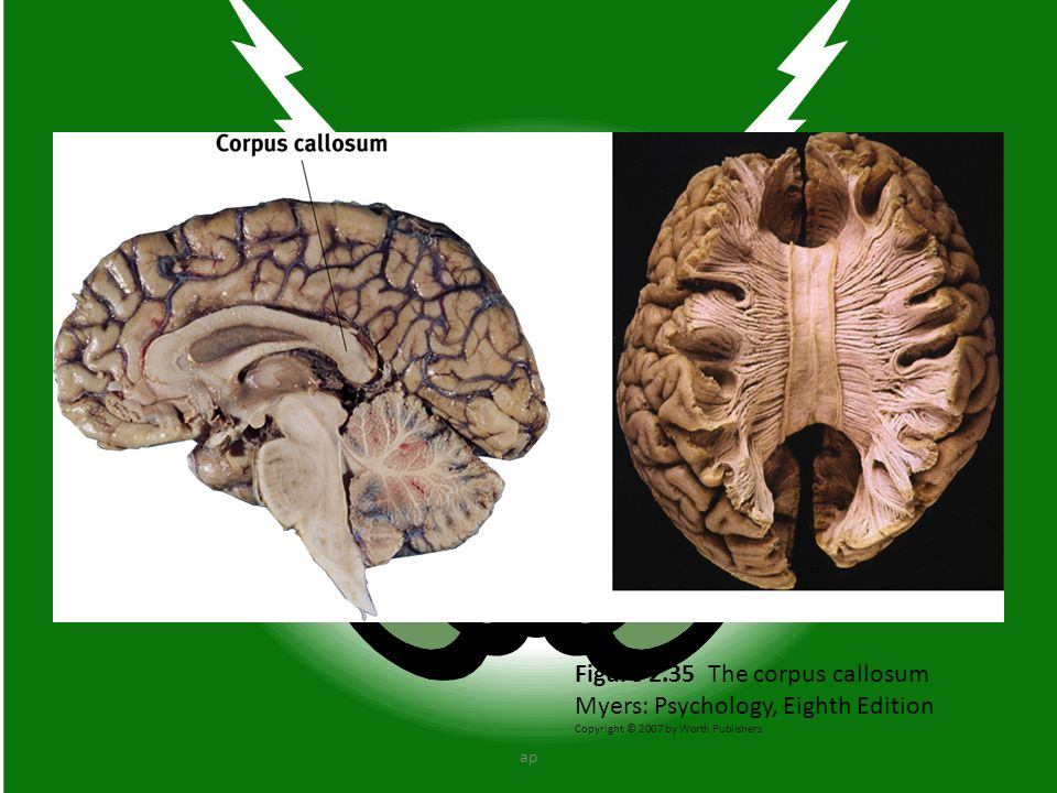 Figure 2.35 The corpus callosum Myers: Psychology, Eighth Edition Copyright © 2007 by Worth Publishers