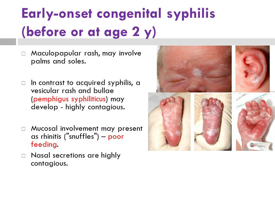 Early-onset congenital syphilis (before or at age 2 y)