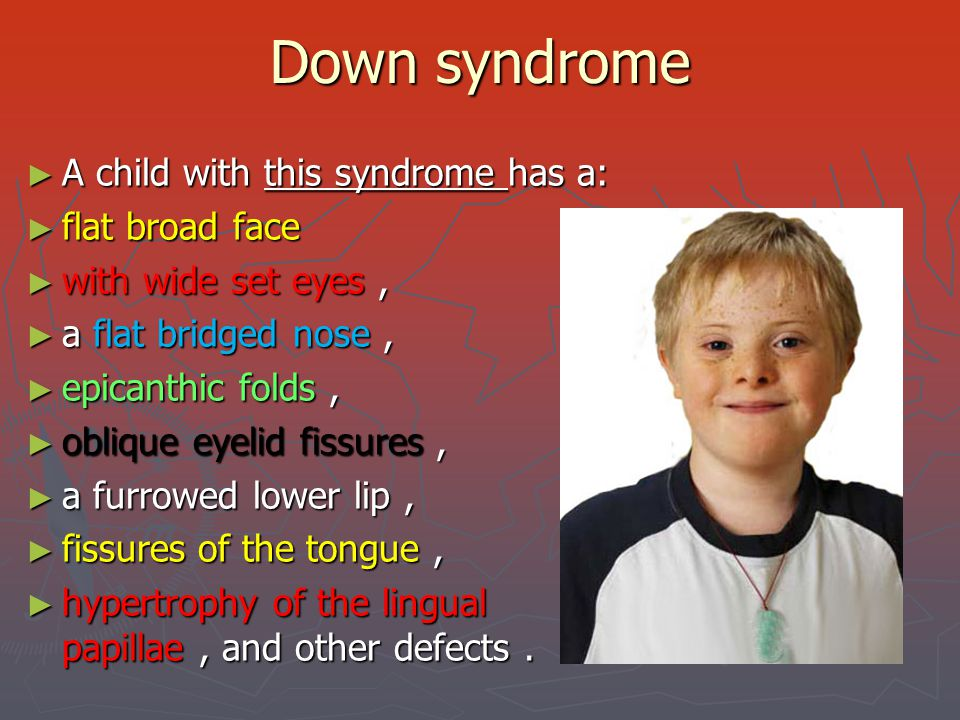 Down syndrome A child with this syndrome has a: flat broad face