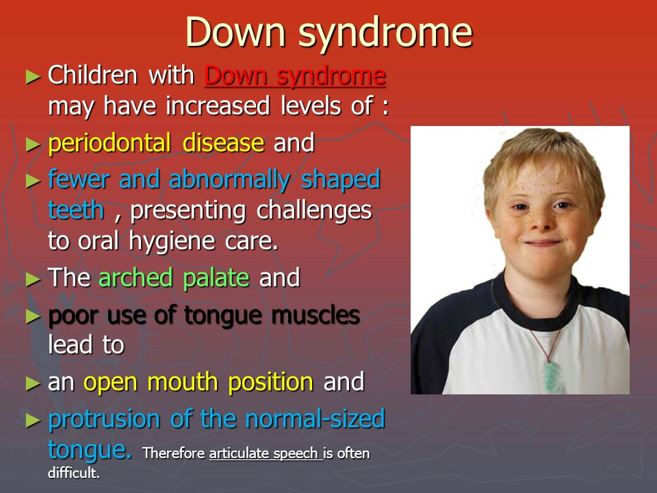 Down syndrome Children with Down syndrome may have increased levels of : periodontal disease and.