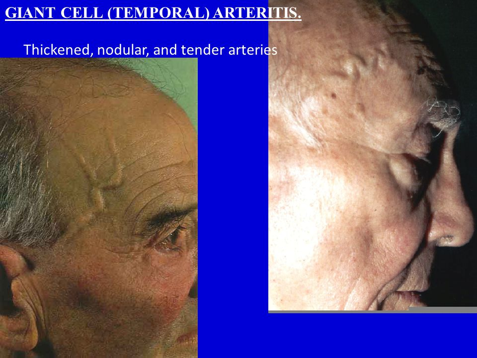 GIANT CELL (TEMPORAL) ARTERITIS.
