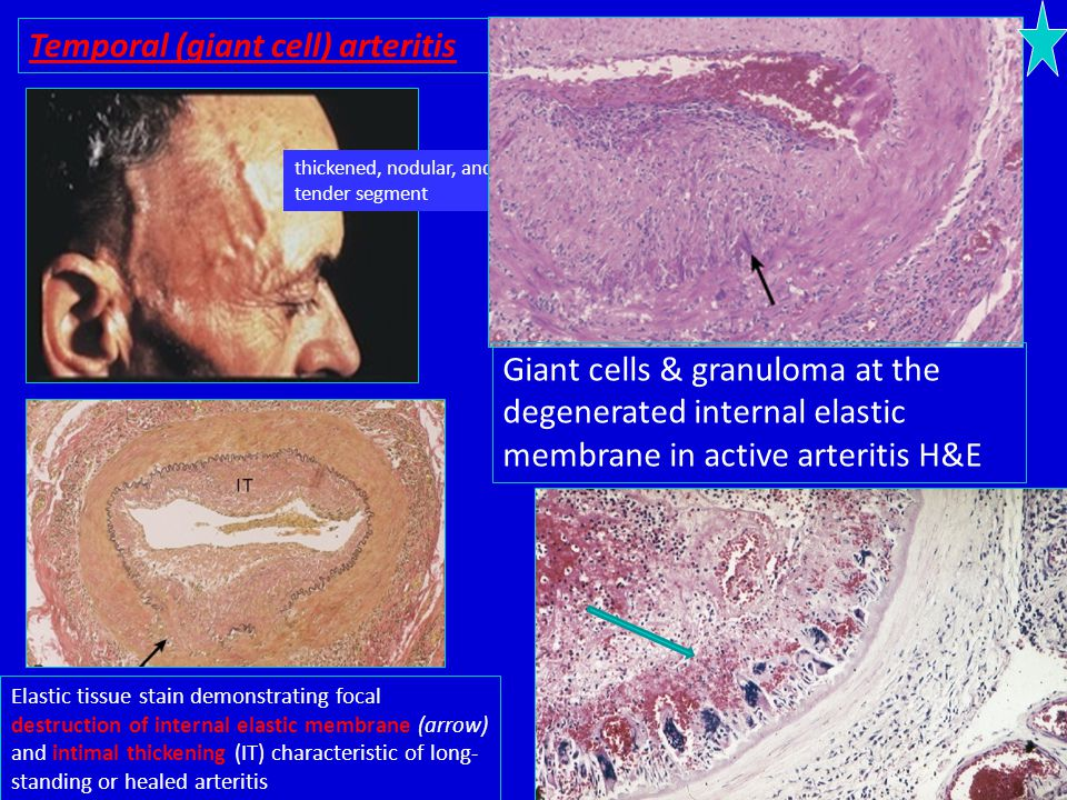 Temporal (giant cell) arteritis