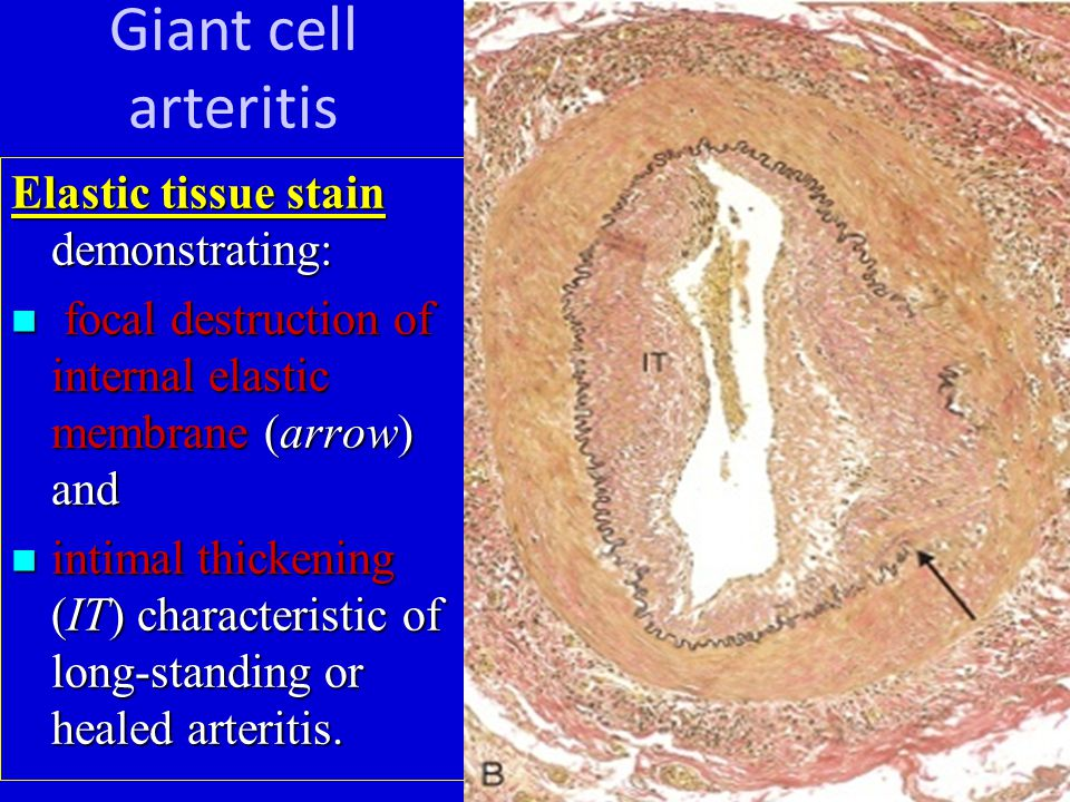 Giant cell arteritis Elastic tissue stain demonstrating: