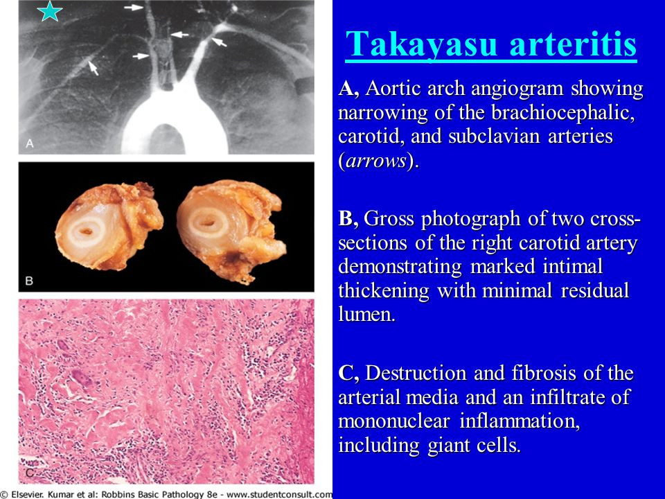 Takayasu arteritis A, Aortic arch angiogram showing narrowing of the brachiocephalic, carotid, and subclavian arteries (arrows).