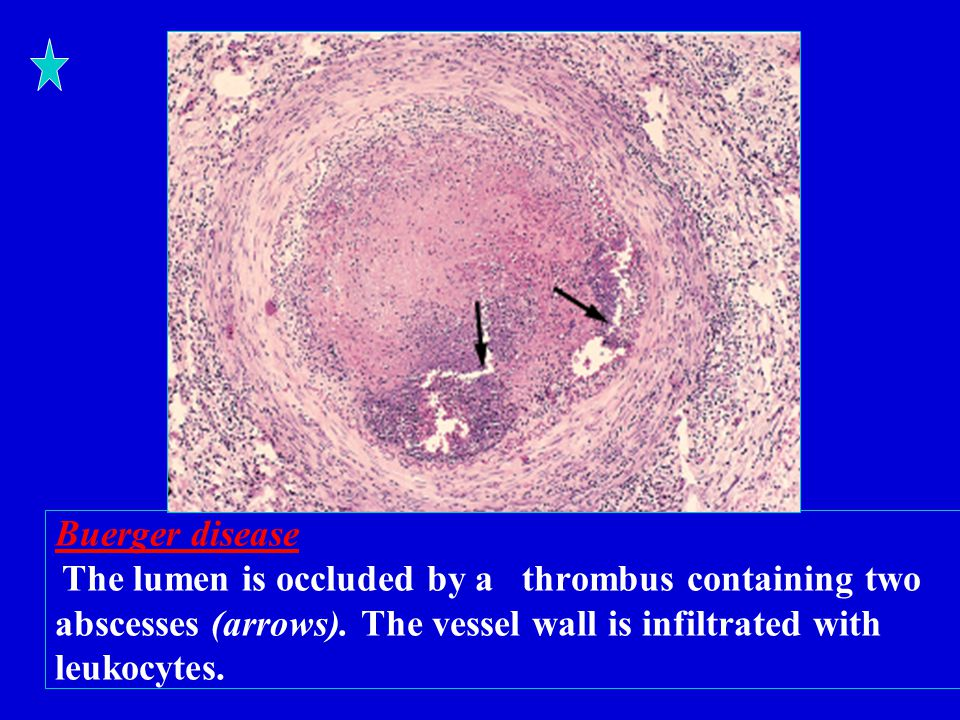 Buerger disease The lumen is occluded by a thrombus containing two abscesses (arrows).
