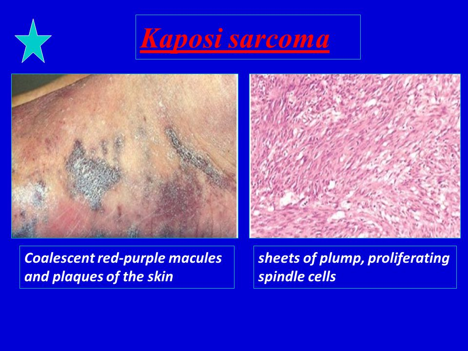 Kaposi sarcoma Coalescent red-purple macules and plaques of the skin