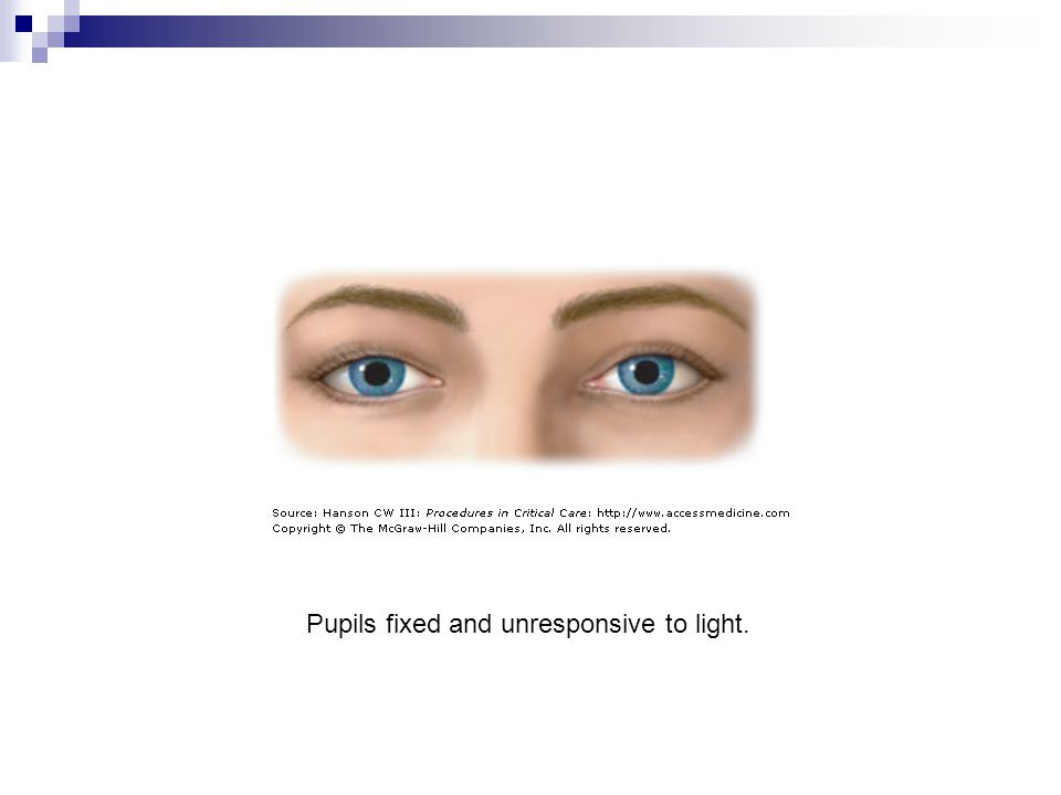 Pupils fixed and unresponsive to light.
