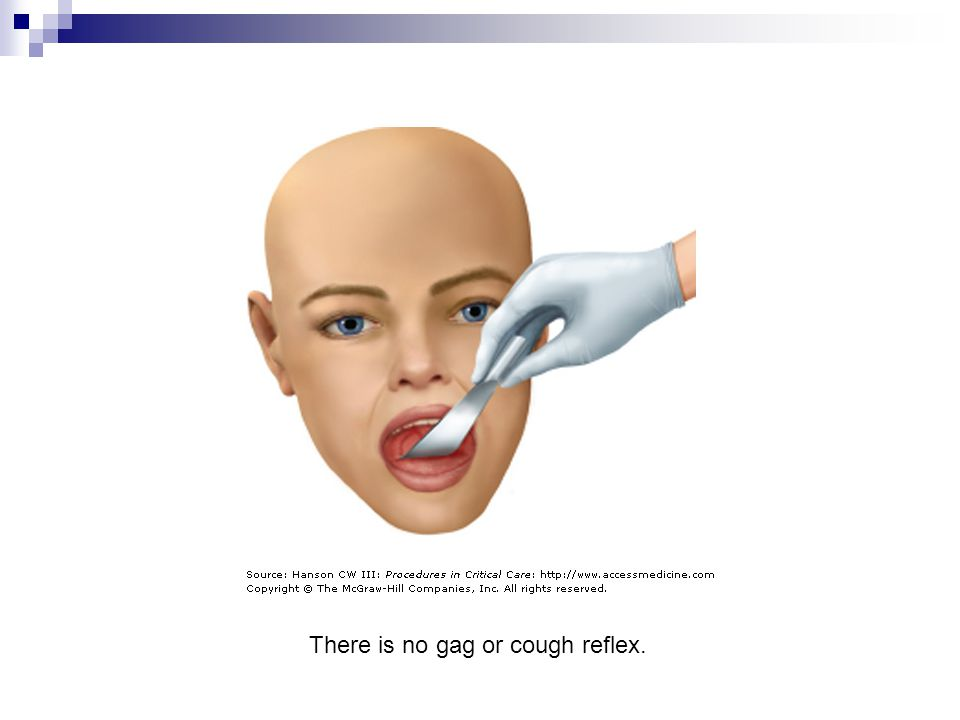 There is no gag or cough reflex.