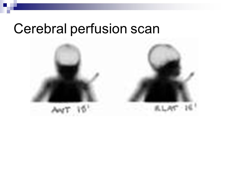 Cerebral perfusion scan