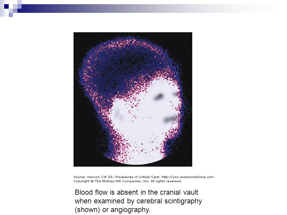 Blood flow is absent in the cranial vault when examined by cerebral scintigraphy (shown) or angiography.