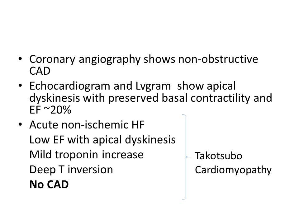 Coronary angiography shows non-obstructive CAD