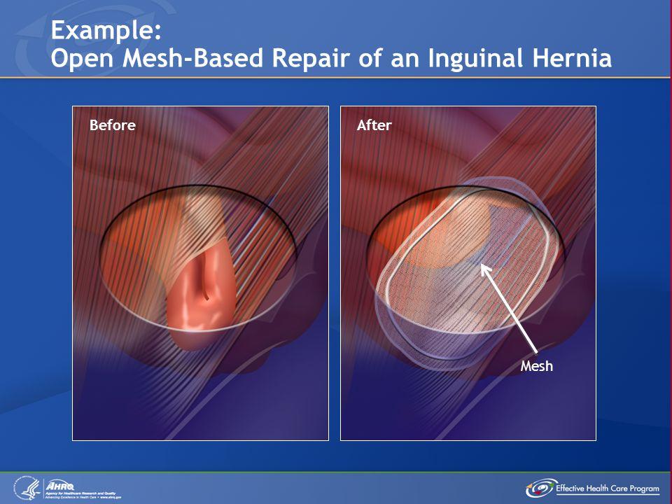 Example: Open Mesh-Based Repair of an Inguinal Hernia