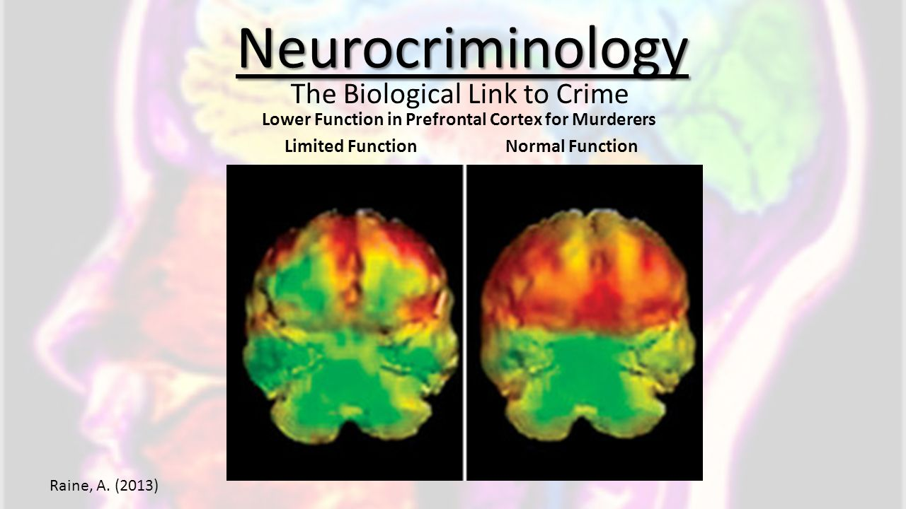 Lower Function in Prefrontal Cortex for Murderers