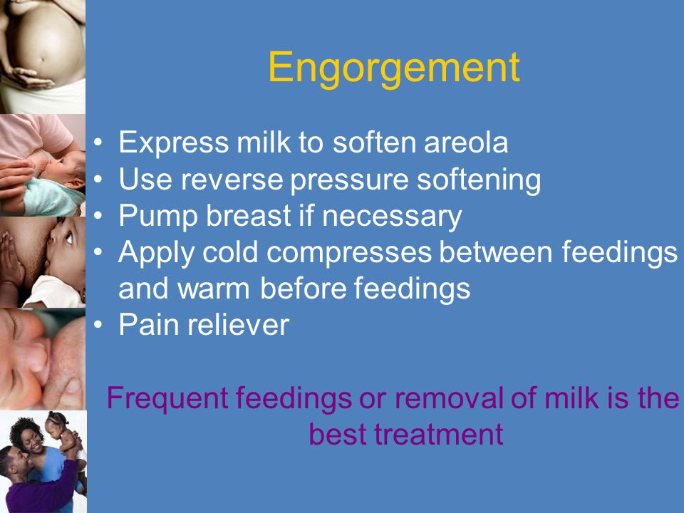 Frequent feedings or removal of milk is the best treatment