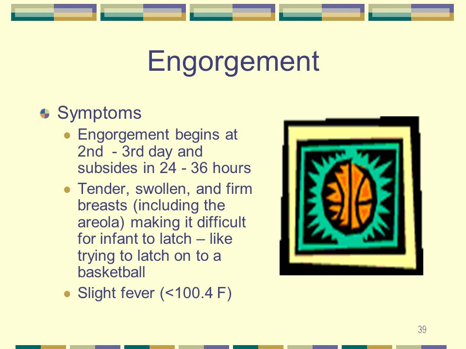 Engorgement Symptoms. Engorgement begins at 2nd - 3rd day and subsides in 24 - 36 hours.