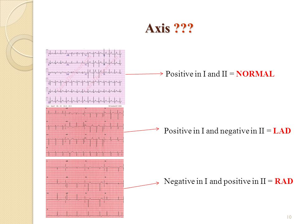Axis Positive in I and II = NORMAL