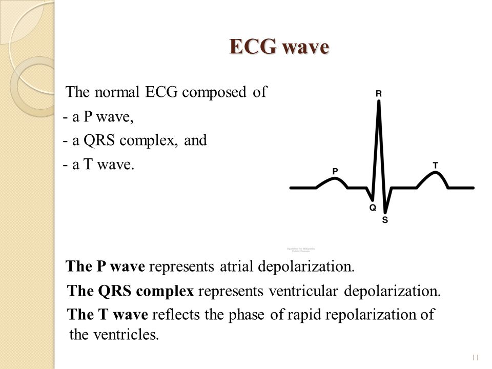 ECG wave The normal ECG composed of