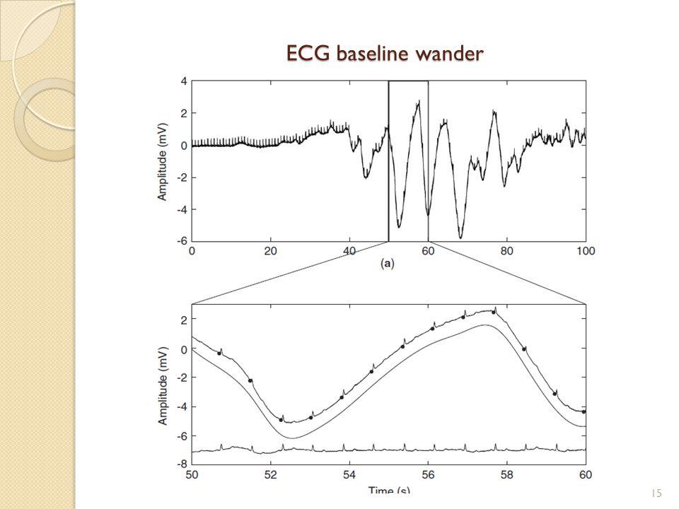 ECG baseline wander