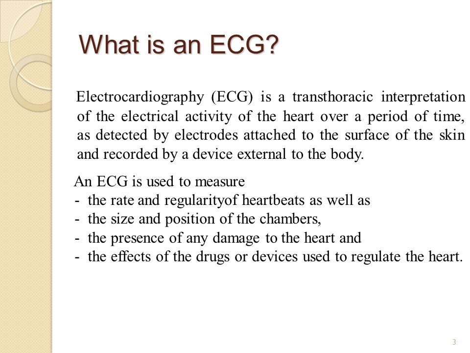 What is an ECG