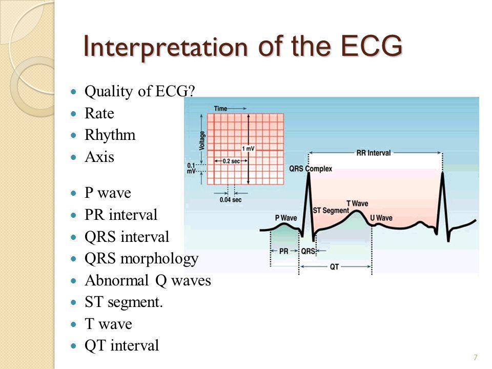 Interpretation of the ECG