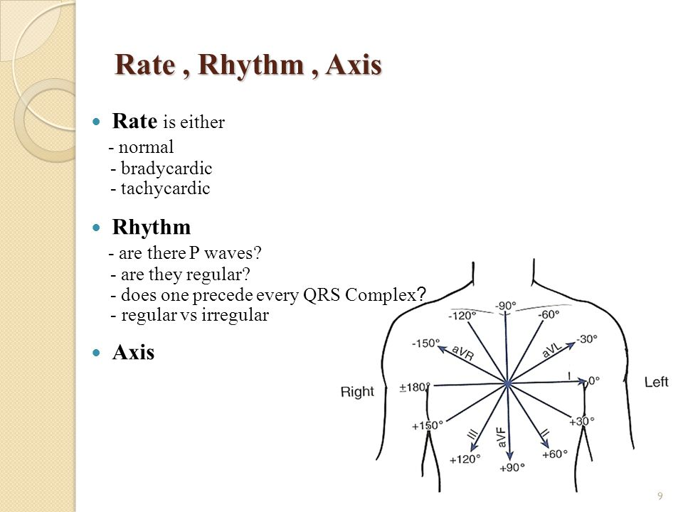 Rate , Rhythm , Axis Rate is either - normal Rhythm