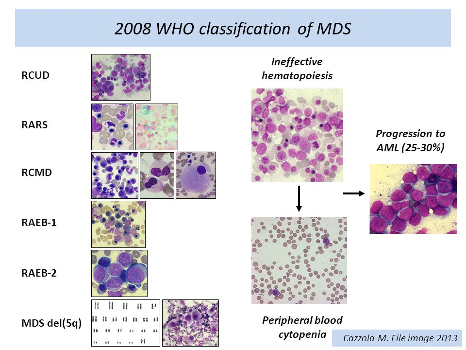 2008 WHO classification of MDS