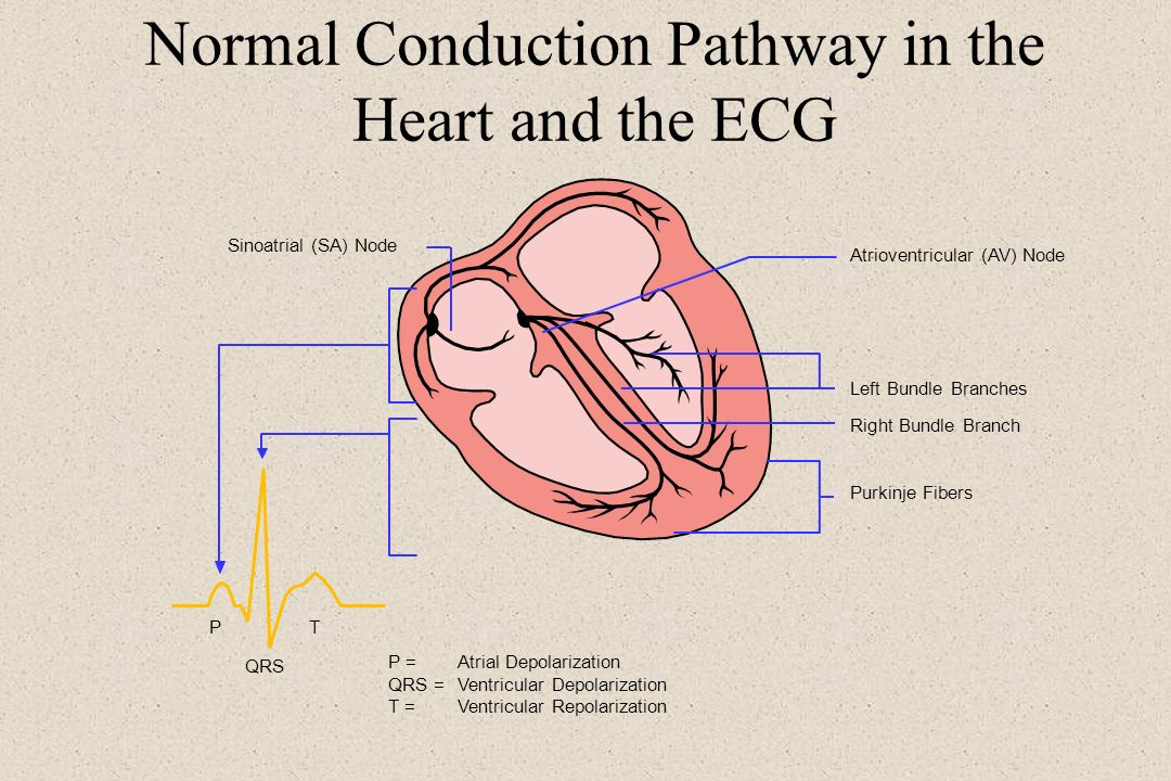 Normal Conduction Pathway in the Heart and the ECG