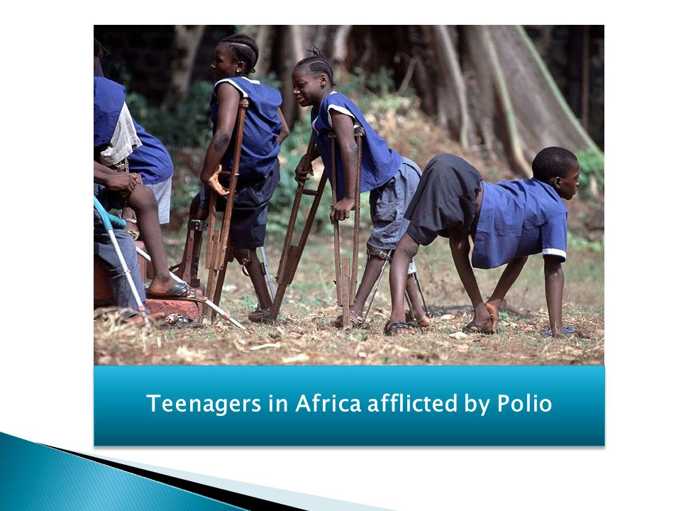 Teenagers in Africa afflicted by Polio