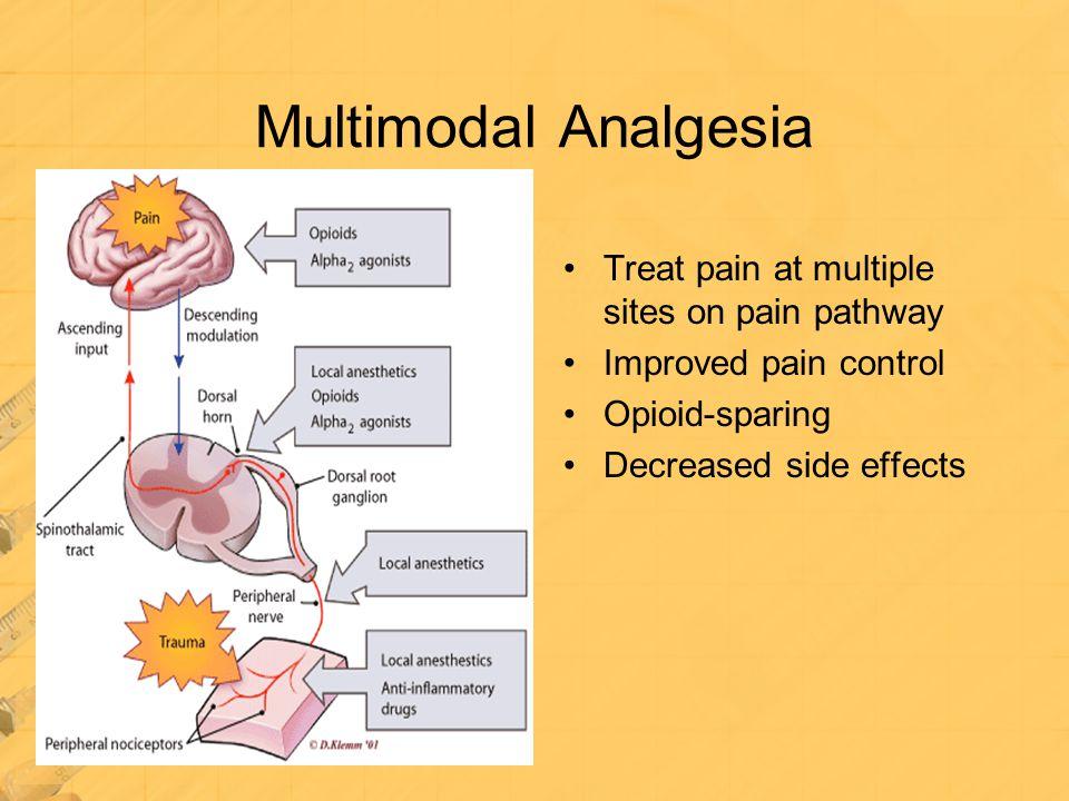 Multimodal Analgesia Treat pain at multiple sites on pain pathway