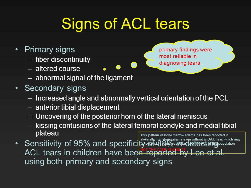 Signs of ACL tears Primary signs Secondary signs